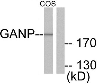 MCM3AP / GANP Antibody - Western blot analysis of lysates from COS7 cells, using GANP Antibody. The lane on the right is blocked with the synthesized peptide.