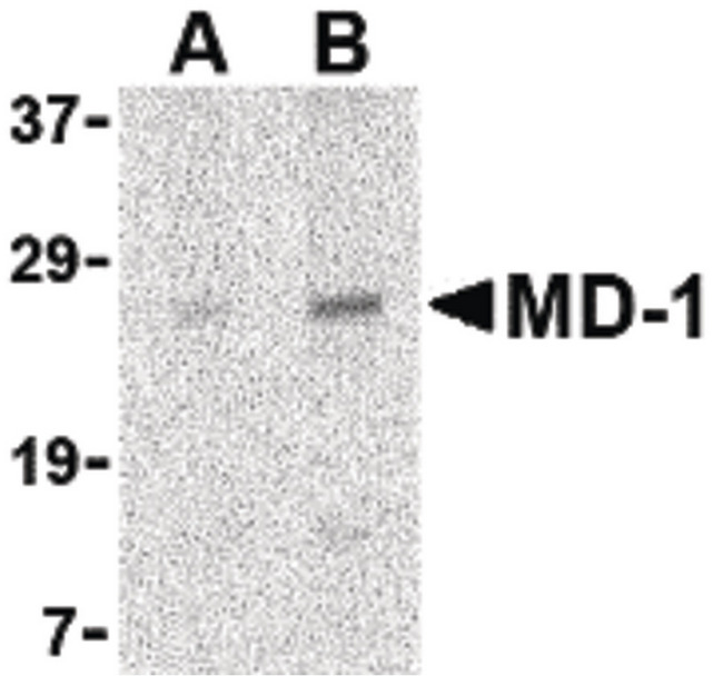 MD-1 / LY86 Antibody - Western blot of MD-1 in Daudi cell lysate with MD-1 antibody at (A) 1 and (B) 2 ug/ml.
