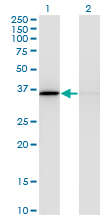 Western blot of MDH1 expression in transfected 293T cell line by MDH1 monoclonal antibody, clone 1D2.