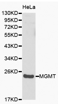 MGMT Antibody - Western blot analysis of HeLa cell lysate using MGMT antibody.