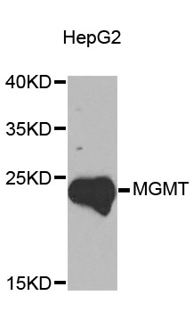 MGMT Antibody - Western blot analysis of extracts of HepG2 cells, using MGMT antibody at 1:1000 dilution. The secondary antibody used was an HRP Goat Anti-Rabbit IgG (H+L) at 1:10000 dilution. Lysates were loaded 25ug per lane and 3% nonfat dry milk in TBST was used for blocking. An ECL Kit was used for detection and the exposure time was 90s.