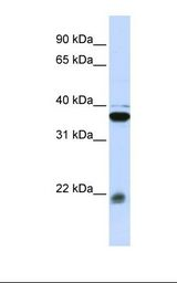 MLC2 / MYL9 Antibody - Jurkat cell lysate. Antibody concentration: 1.0 ug/ml. Gel concentration: 12%.  This image was taken for the unconjugated form of this product. Other forms have not been tested.