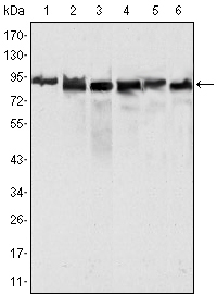 MLH1 Antibody - Western blot using MLH1 mouse monoclonal antibody against HeLa (1), MCF-7 (2) and A549 (3), Jurkat (4), 2R75 (5) and COS (6) cell lysate.