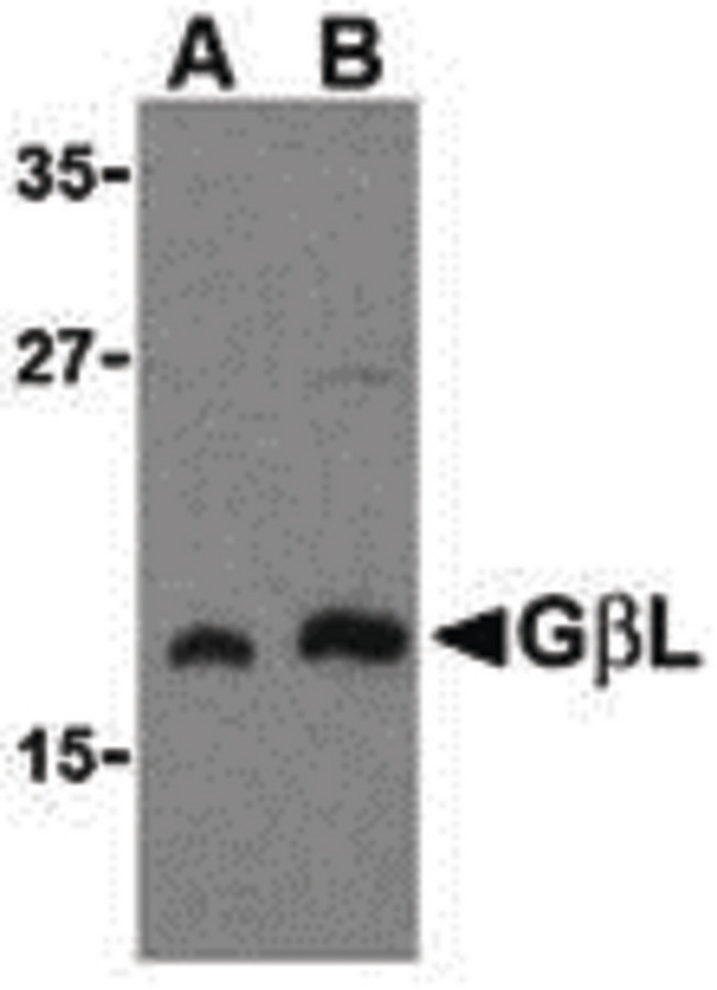 MLST8 / GBL Antibody - Western blot of GbL in human brain cell lysate with GbL antibody at (A) 1 and (B) 2 ug/ml.