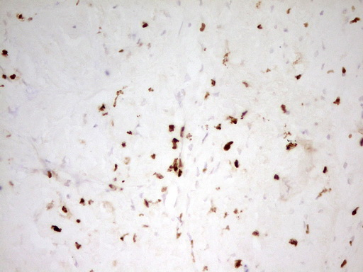 MNDA Antibody - IHC of paraffin-embedded Carcinoma of Human liver tissue using anti-MNDA mouse monoclonal antibody. (Heat-induced epitope retrieval by 1 mM EDTA in 10mM Tris, pH8.5, 120°C for 3min).