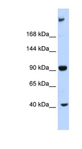 MPDZ antibody Western blot of Fetal Liver lysate. This image was taken for the unconjugated form of this product. Other forms have not been tested.