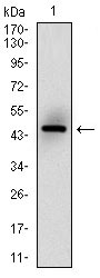 MSH6 Antibody - Western blot using MSH6 monoclonal antibody against human MSH6 (AA: 217-395) recombinant protein. (Expected MW is 45.5 kDa)