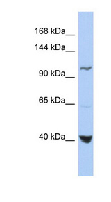 MTHFD1 Antibody - MTHFD1 antibody Western blot of OVCAR-3 cell lysate. This image was taken for the unconjugated form of this product. Other forms have not been tested.