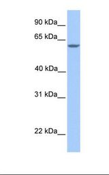 MTL5 / TESMIN Antibody - Fetal brain lysate. Antibody concentration: 1.0 ug/ml. Gel concentration: 12%.  This image was taken for the unconjugated form of this product. Other forms have not been tested.