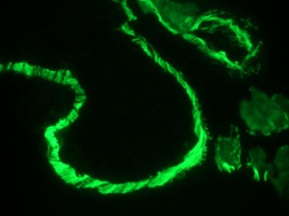 Muscle Actin Antibody - Immunofluorescence staining of intestinal muscle tissue in 1 month old zebrafish embryo