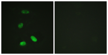 Immunofluorescence analysis of HeLa cells, using MYB Antibody. The picture on the right is blocked with the synthesized peptide.