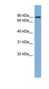 NAK / TBK1 Antibody - TBK1 antibody Western blot of Fetal Kidney lysate. This image was taken for the unconjugated form of this product. Other forms have not been tested.