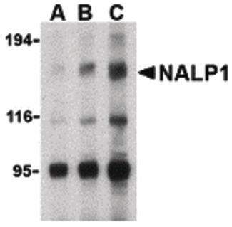 NALP1 / NLRP1 Antibody - Western blot of NALP1 in U937 cell lysate with NALP1 antibody at (A) 1, (B) 2 and (C) 4 ug/ml.