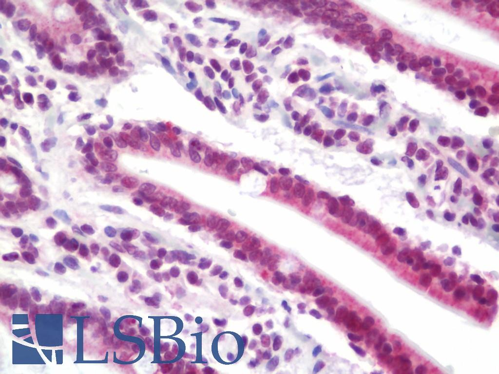 Anti-NCOA2 / TIF2 antibody IHC staining of human small intestine. Immunohistochemistry of formalin-fixed, paraffin-embedded tissue after heat-induced antigen retrieval.