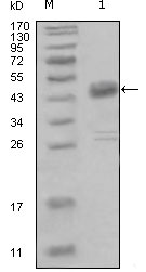 Western blot using DDR1 mouse monoclonal antibody against truncated MBP-DDR1 recombinant protein (1).