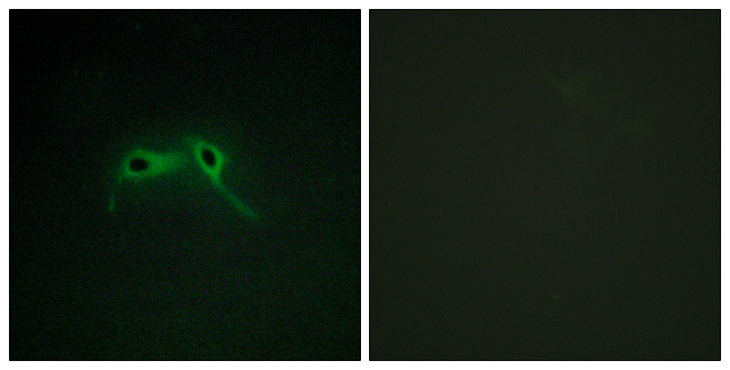 Neurofibromin / NF1 Antibody - Immunofluorescence analysis of HepG2 cells, using NF1 Antibody. The picture on the right is blocked with the synthesized peptide.