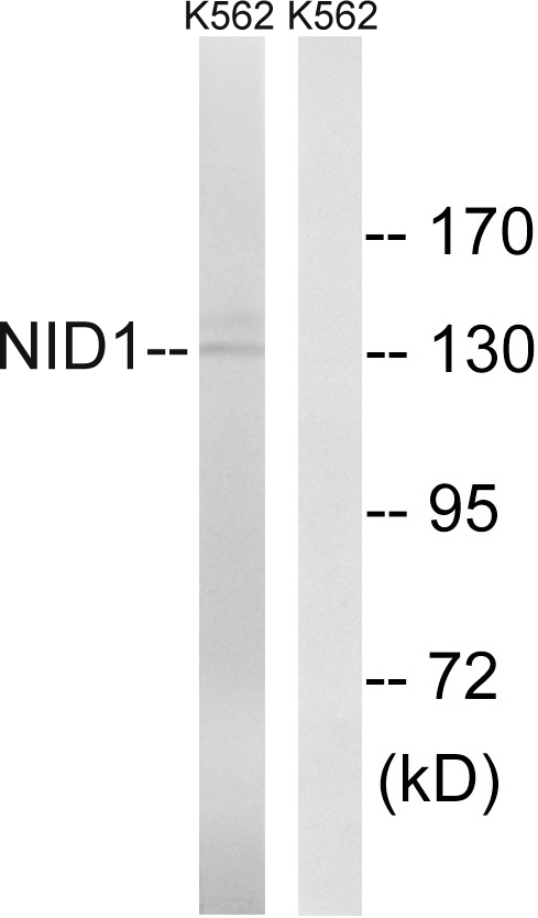 NID1 / Entactin / Nidogen-1 Antibody - Western blot analysis of lysates from K562 cells, using NID1 Antibody. The lane on the right is blocked with the synthesized peptide.
