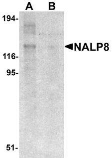 NLRP8 Antibody - Western blot analysis of NALP8 in human colon tissue lysate with NALP8 antibody at 1 ug/ml in (A) the absence and (B) the presence of blocking peptide.