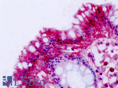 NPFF2 / NPFFR2 Antibody - Anti-NPFF2 / NPFFR2 antibody IHC of human colon. Immunohistochemistry of formalin-fixed, paraffin-embedded tissue after heat-induced antigen retrieval. Antibody dilution 4-7 ug/ml.