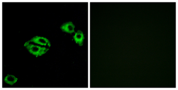 NPY5R Antibody - Immunofluorescence analysis of A549 cells, using NPY5R Antibody. The picture on the right is blocked with the synthesized peptide.