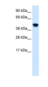 NR1H4 / FXR Antibody - NR1H4 antibody Western blot of Fetal lung lysate. This image was taken for the unconjugated form of this product. Other forms have not been tested.