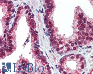 Anti-NR2E1 antibody IHC of human prostate. Immunohistochemistry of formalin-fixed, paraffin-embedded tissue after heat-induced antigen retrieval. Antibody concentration 5 ug/ml.  This image was taken for the unconjugated form of this product. Other forms have not been tested.