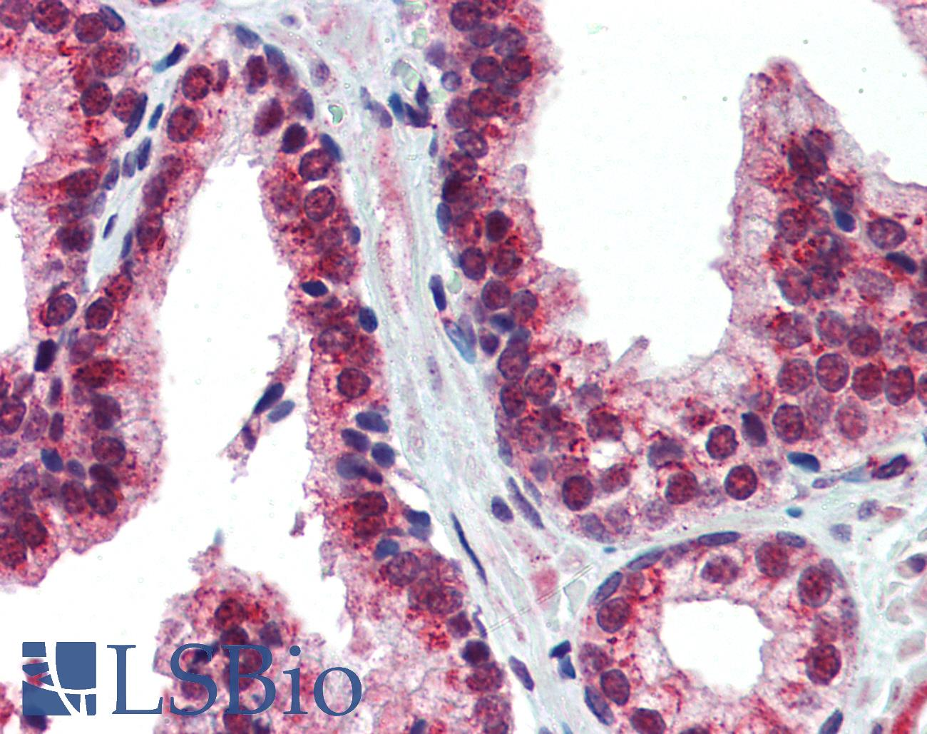 NR2E1 / TLX Antibody - Anti-NR2E1 antibody IHC of human prostate. Immunohistochemistry of formalin-fixed, paraffin-embedded tissue after heat-induced antigen retrieval. Antibody concentration 5 ug/ml.  This image was taken for the unconjugated form of this product. Other forms have not been tested.