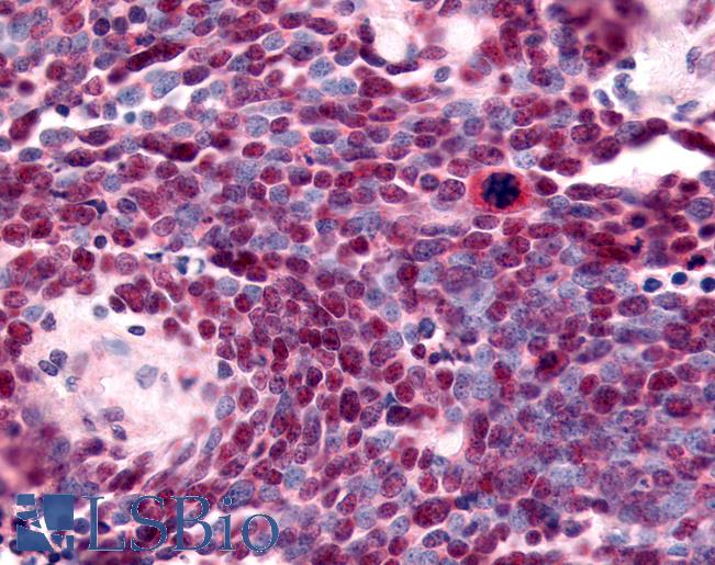 Anti-NR2E1 / TLX antibody IHC of human Lung, Small Cell Carcinoma. Immunohistochemistry of formalin-fixed, paraffin-embedded tissue after heat-induced antigen retrieval.