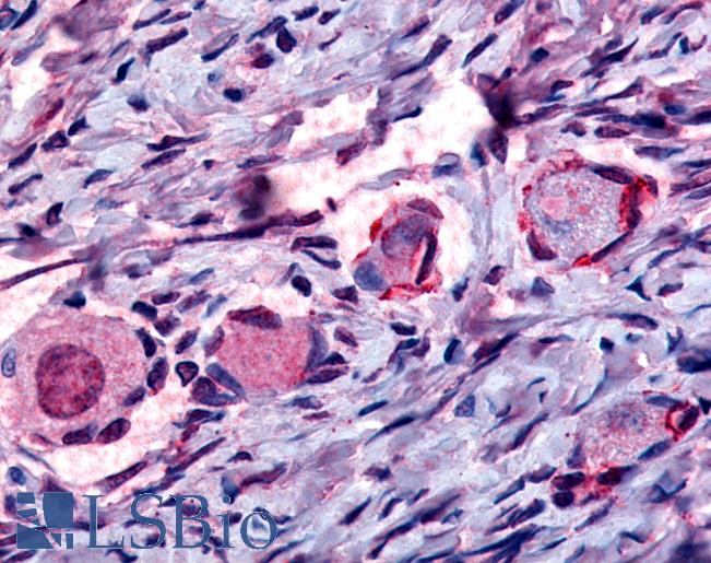 Anti-NUR77 antibody IHC of human primary follicles. Immunohistochemistry of formalin-fixed, paraffin-embedded tissue after heat-induced antigen retrieval.
