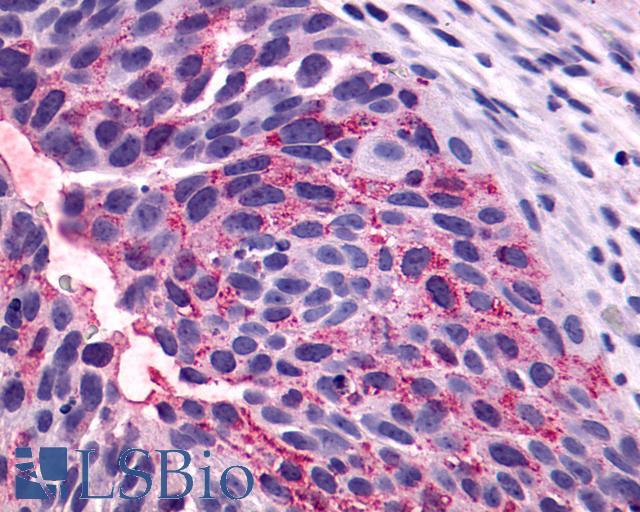 NTSR1 / NTR Antibody - Anti-NTSR1 / NTR antibody IHC of human Bladder, Carcinoma. Immunohistochemistry of formalin-fixed, paraffin-embedded tissue after heat-induced antigen retrieval.