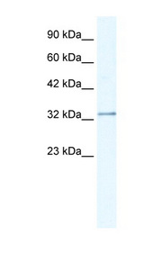 NUDT9 Antibody - NUDT9 antibody Western blot of Jurkat lysate. This image was taken for the unconjugated form of this product. Other forms have not been tested.