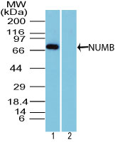 NUMB Antibody - Western blot of NUMB in mouse brain lysate in the 1) absence and 2) presence of immunizing peptide using NUMB Antibody at 1 ug/ml. Goat anti-rabbit Ig HRP secondary antibody, and PicoTect ECL substrate solution were used for this test.