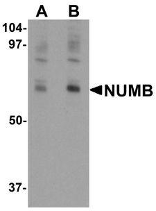 NUMB Antibody - Western blot analysis of NUMB in mouse lung tissue lysate with NUMB antibody at (A) 0.25 and (B) 0.5 ug/ml.