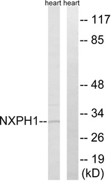 NXPH1 Antibody - Western blot analysis of lysates from rat heart cells, using NXPH1 Antibody. The lane on the right is blocked with the synthesized peptide.
