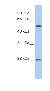 OCLN / Occludin antibody Western blot of COLO205 cell lysate. This image was taken for the unconjugated form of this product. Other forms have not been tested.