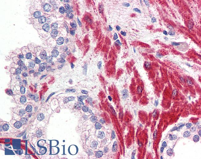 OR51E1 Antibody - Anti-OR51E1 antibody IHC of human prostate. Immunohistochemistry of formalin-fixed, paraffin-embedded tissue after heat-induced antigen retrieval.