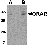 Western blot of ORAI3 in A20 cell lysate with ORAI3 antibody at (A) 2 and (B) 4 ug/ml.