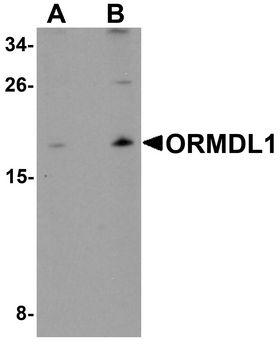 ORMDL1 Antibody - Western blot analysis of ORMDL1 in SK-N-SH Cell lysate with ORMDL1 antibody at (A) 1 ug/ml and (B) 2 ug/ml.