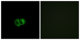 Immunofluorescence of MCF7 cells, using OXER1 Antibody. The picture on the right is treated with the synthesized peptide.