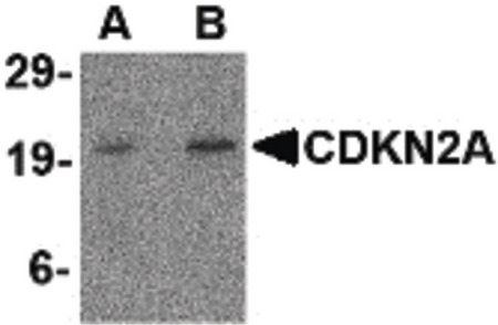 p16INK4a / CDKN2A Antibody - Western blot of CDKN2A in mouse colon tissue lysate with CDKN2A antibody at (A) 1 and (B) 2 ug/ml.