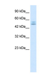 P2RX2 / P2X2 Antibody - P2RX2 / P2X2 antibody Western blot of Jurkat lysate. This image was taken for the unconjugated form of this product. Other forms have not been tested.