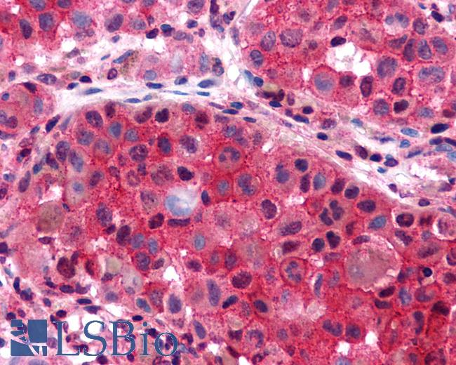 Anti-P2RY6 / P2Y6 antibody IHC of human Skin, Melanoma. Immunohistochemistry of formalin-fixed, paraffin-embedded tissue after heat-induced antigen retrieval.