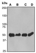 PABPN1 / PABP2 Antibody - Western blot analysis on (A) T47D, (B) SKBR3, (C) Ramos and (D) Raji cell lysates using anti-PABP2 antibody, dilution 1:20000.