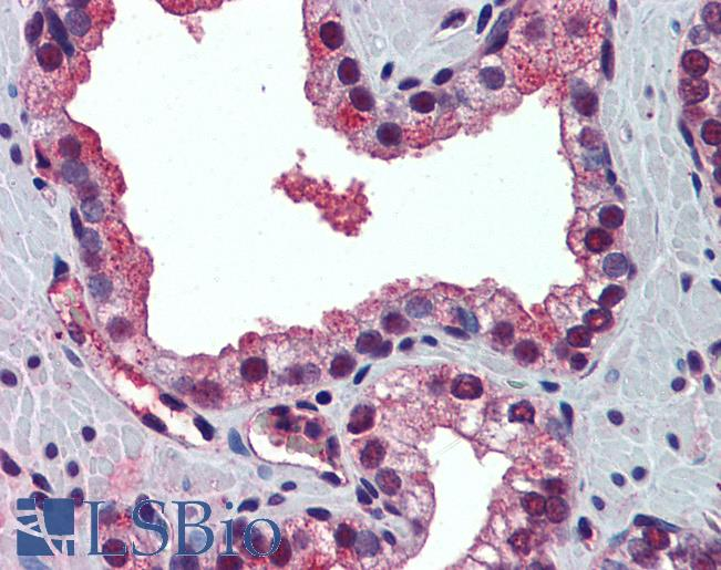PABPN1 / PABP2 Antibody - Anti-PABPN1 antibody IHC of human prostate. Immunohistochemistry of formalin-fixed, paraffin-embedded tissue after heat-induced antigen retrieval. Antibody concentration 5 ug/ml.  This image was taken for the unconjugated form of this product. Other forms have not been tested.