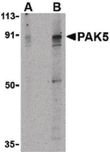 PAK7/PAK5 Antibody - Western blot of PAK5 in T24 lysate with PAK5 antibody at (A) 2 and (B) 4 ug/ml.
