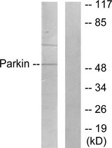 Western blot analysis of lysates from Jurkat cells, using Parkin Antibody. The lane on the right is blocked with the synthesized peptide.