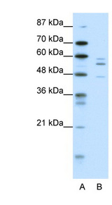 PAX6 antibody Western blot of HepG2 cell lysate. This image was taken for the unconjugated form of this product. Other forms have not been tested.