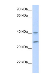 PCA1 / ALKBH3 Antibody - ALKBH3 antibody Western blot of Fetal Muscle lysate. This image was taken for the unconjugated form of this product. Other forms have not been tested.