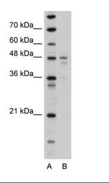 PDK4 Antibody - Transfected 293T Cell Lysate.  This image was taken for the unconjugated form of this product. Other forms have not been tested.