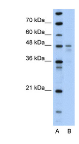 PDK4 Antibody - PDK4 antibody Western blot of Transfected 293T cell lysate. This image was taken for the unconjugated form of this product. Other forms have not been tested.